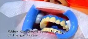 Wybielanie zębów - nałożenie koferdanu