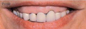 Zęby przed założeniem koron