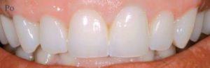 Zęby z koronami z Zirkonzahn