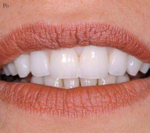 Idealne zęby