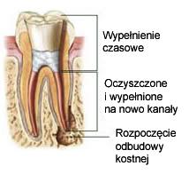 Ząb do leczenia kanałowego