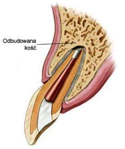 Kanał zębowy - odbudowa kości