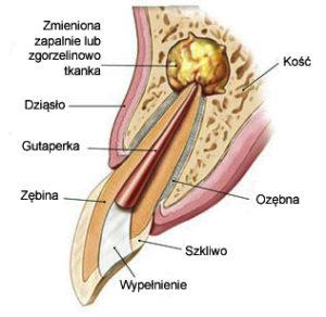 Kanał zębowy - odsłonięcie dziąsła
