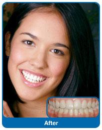 Efekt noszenia aparatu ortodontycznego