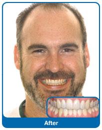Efekt leczenia  zębów