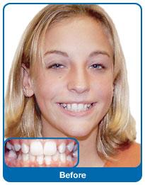 Zęby wymagające korekty
