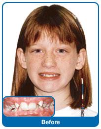 Zęby wymagające leczenia ortodontycznego