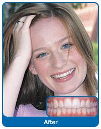 Efekt leczenia ortodontycznego