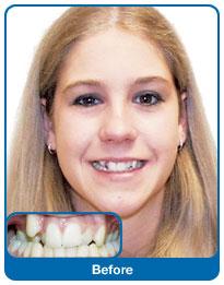 Zęby kwalifikujące się do leczenia ortodontycznego