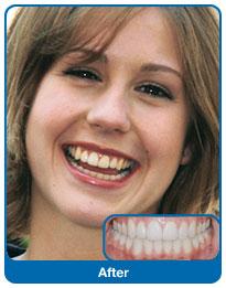 Zęby wyleczone ortodontycznie