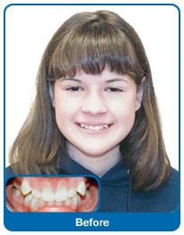Przed założeniem aparatu ortodontycznego