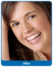 Po zakończonym leczeniu ortodontycznym