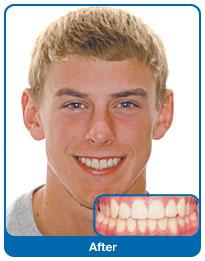 Zakończone leczenie ortodontyczne