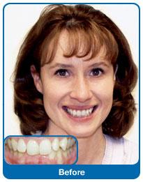 Przed  rozpoczęciem leczenia ortodontycznego
