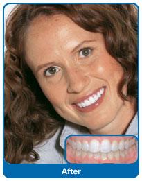 Po zdjęciu aparatu ortodontycznego
