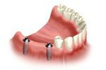 Wszczepienie implantów przy braku kilku zębów