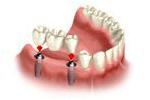 Mocowanie mostu na implantach
