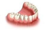 Efekt założenia mostu na implantach