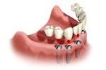 Założenie protezy na implanty
