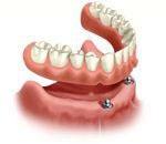 Założenie łuku protetycznego na implantach