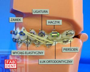 Budowa aparatu ortodontycznego