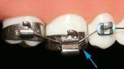 Odczepiony zamek ortodontyczny