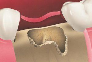 Usuwanie zmienionej tkanki zębodołu przed przeszczepem