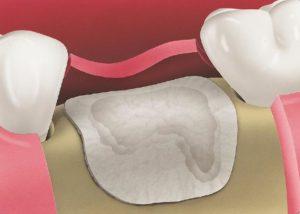 Użycie materiału Bio-Glide do zabezpieczenia zębodołu