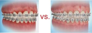 Skutki nieodpowiedniej higieny jamy ustnej
