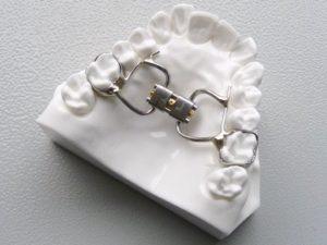 Aparat ortodontyczny Hyrax