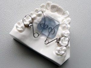 Aparat ortodontyczny Pendulum