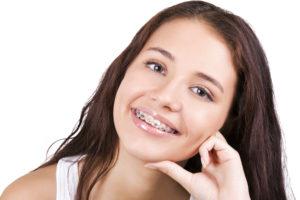 Noszenie aparatu ortodontycznego